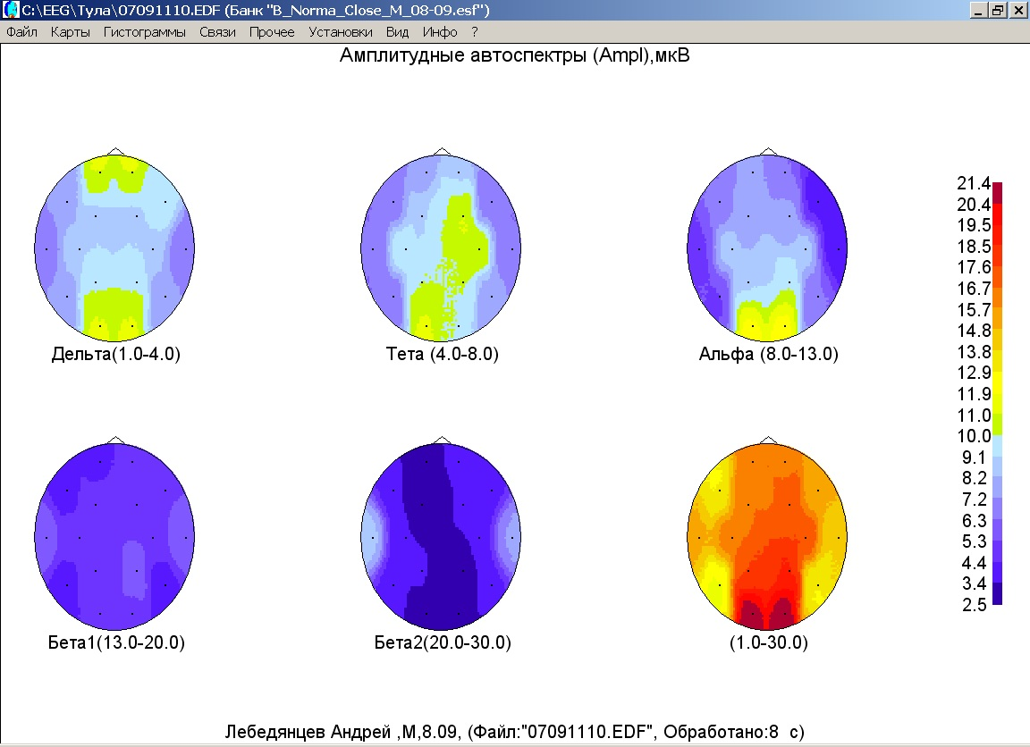 Циннаризин при эпилепсии улучшилась энцефалограмма